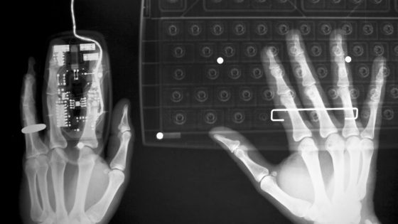 x-ray of designer